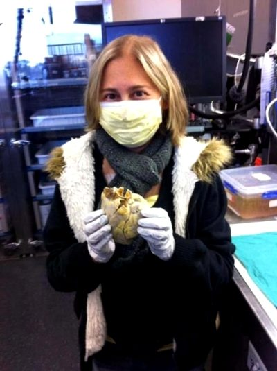Penny Smith Holds Ber Previous Heart After A Successful Heart Transplant